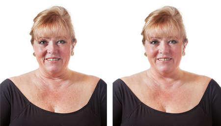 Mature fifty-something woman considering wrinkle removal and skin smoothing photo