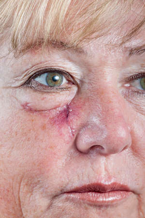 carcinoma: Mature woman with scar and spitting suture one week after Mohs surgery for Basal Cell Carcinoma - closeup Stock Photo