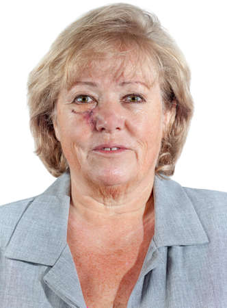 carcinoma: Mature woman with stitched cheek one week after Mohs surgery for Basal Cell Carcinoma Stock Photo