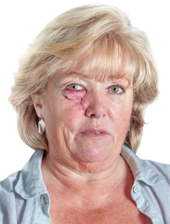 carcinoma: Mature woman with stitched cheek one day after Mohs surgery for Basal Cell Carcinoma Stock Photo