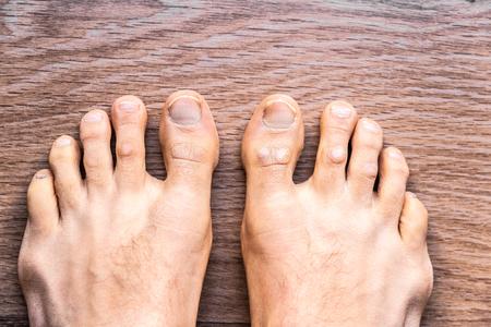 Füße eines barfüßigen Mannes mit Psoriasis-Dermatitis an seinen Fingern.
