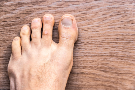 Toes affected by dermal problems, red rash produced plaques of..