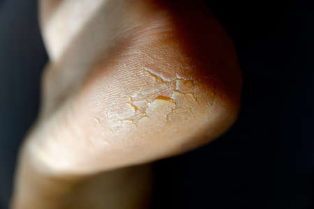 Cracked and dry heel of the foot skin.