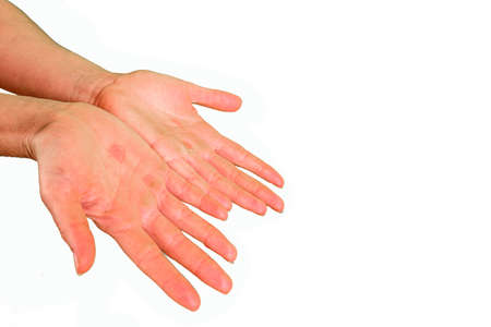 Woman shows the palms of her hands with calluses from hard work, isolated on white background.