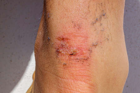 Detail of the wound produced by a burst blister on the achilles of an athlete. 免版税图像 - 167255449