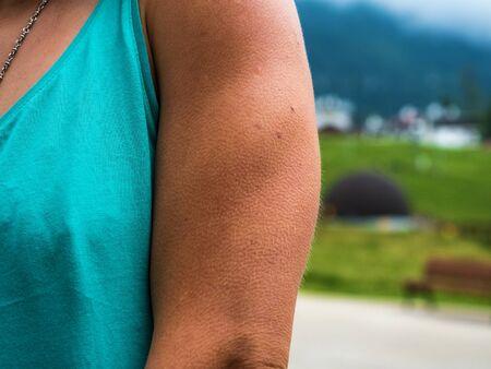 Grandi pelle d'oca per il freddo sulla mano della ragazza