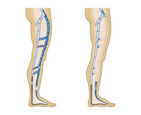 lived: illustration leg veins on a white background
