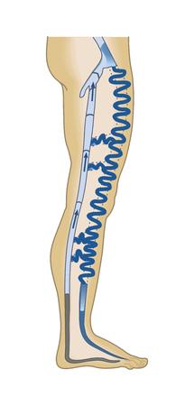 Poster medico di vene varicose. Infografica. Illustrazione vettoriale 2D
