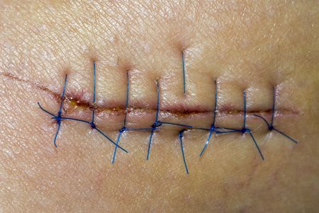 stitches: Medical attention provided to a patient who was cut while at work Stock Photo
