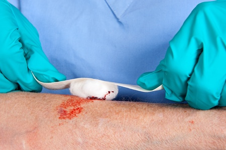 wound care: A nurse tends to a bloody wound on an alderly woman Stock Photo