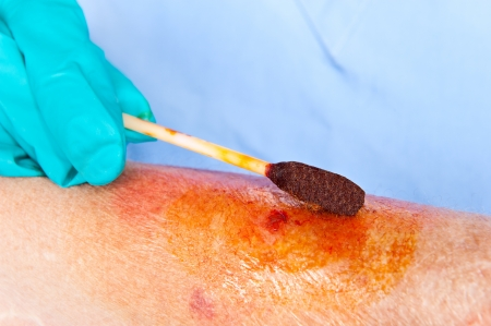 herida: El m�dico limpia una herida con una gasa con yodo Foto de archivo
