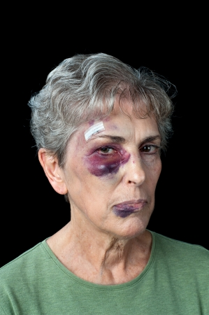 An elderly woman beaten and bruised shows the problems that exist with domestic violence photo
