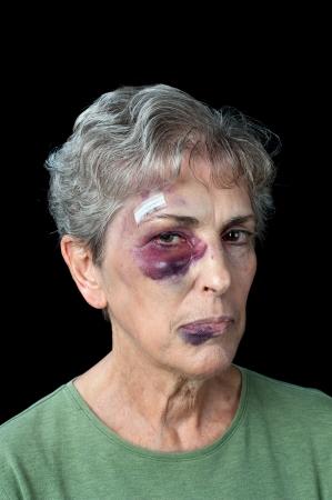 violencia intrafamiliar: Una anciana golpeada y magullada muestra los problemas que existen con la violencia doméstica Foto de archivo