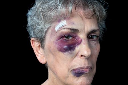 mujer golpeada: Una anciana abuela muy golpeado con puntos de sutura, un ojo negro y un labio hinchado. Foto de archivo