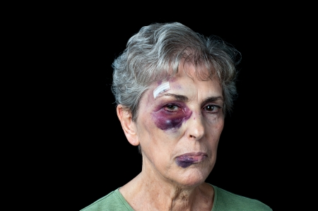 An elderly grandmother badly beaten with stitches, a black eye and a fat lip. Stockfoto