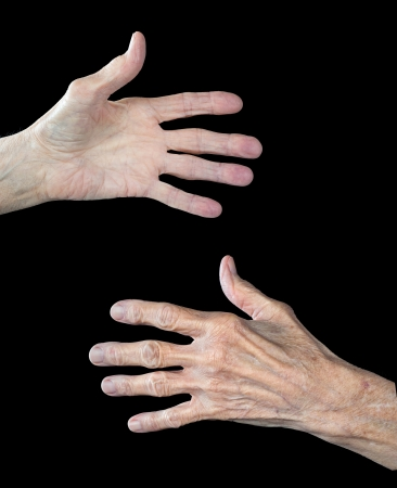 The front and back of an elderly womans hands.  The subject has arthritus and shows clear signs of aging.