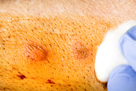 A nurse cleanses a healing wound with iodine and then applies antibacterial ointment
