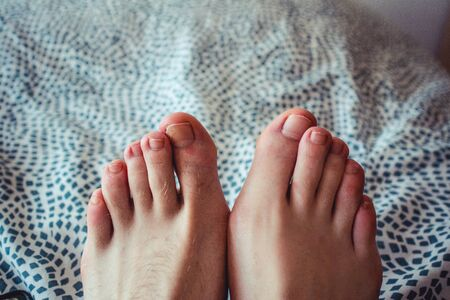 one hairy and ugly foot with a broken nail compared with a beautiful feet Banco de Imagens