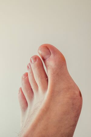 Ugly feet with a broken nail and hairy with big toe.