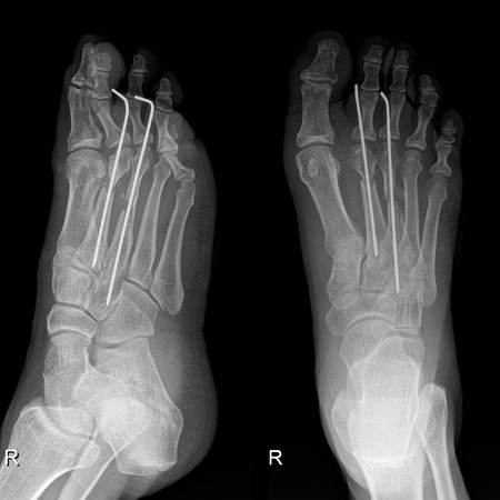 anklebone: X-Ray image of foot depicts small pieces of iron bar