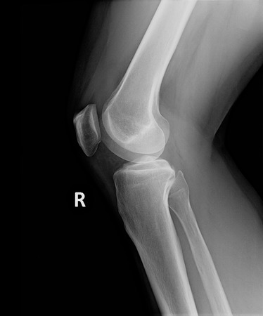 anklebone: X-Ray image of perfect right knee and leg