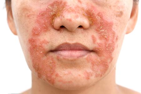 Seborrheic Dermatitis bij volwassen gezicht geïsoleerde witte achtergrond Stockfoto - 97582403