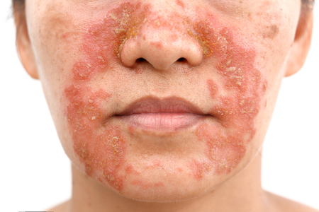 Seborrheic Dermatitis In adult face isolated white background