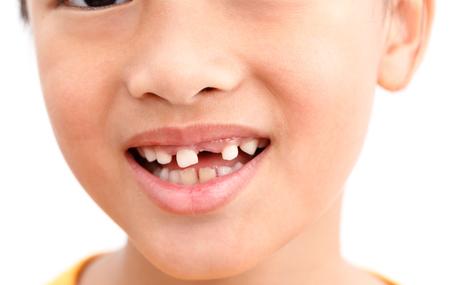 Kleines Mädchen Show Gebrochener Zahn mit Lächeln. Isoliert auf weißem Hintergrund