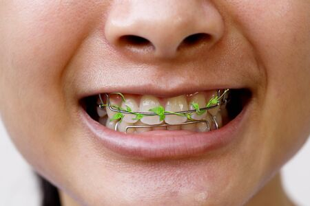 Vines on the teeth retainer. Meaning to maintain cleanliness during teeth braces. Stock Photo