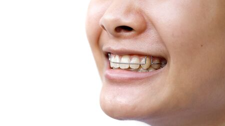Smiling girl, close up photo showing for tooth retainer and oral hygiene Stockfoto