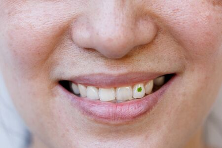 A close-up image shows that there is vegetable debris attached to the teeth.