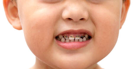 Tooth decay of children who like to eat sweets candy. And doesn't like brushing teeth Stockfoto
