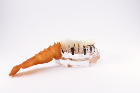 Model of human jaw with teeth and implants