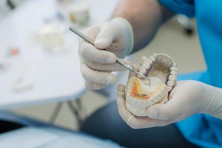 Orthodontist showed how the plate works to flatten teeth on jaws Reklamní fotografie