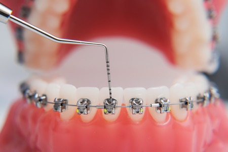macro photography shows how the braces are arranged Banque d'images