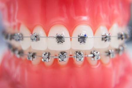 macro photography shows how the braces are arranged Stock Photo