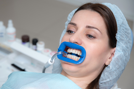 there is a preparation of the oral cavity to bleaching with the help of an ultraviolet lamp. Close-up