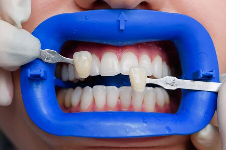 procedure for comparing the color shades of teeth after bleaching