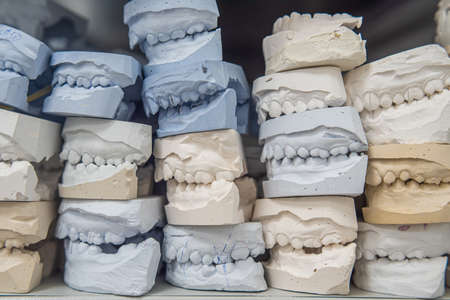 Place of storage of plaster models of human jaws in an orthodontic clinic. Control and diagnostic dental casts