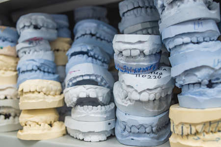 Place of storage of plaster models of human jaws in an orthodontic clinic. Control and diagnostic dental casts 版權商用圖片