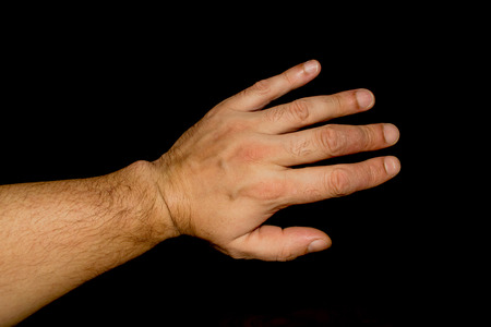 psoriasis: Psoriasis skin condition affects white mans fingers