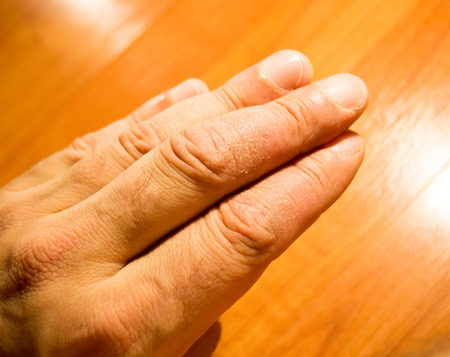 lesions: Psoriasis flaking skin on adult finger Stock Photo