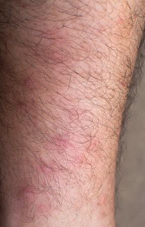 inflamation: Many mosquito bites on the leg of a caucasian male Stock Photo