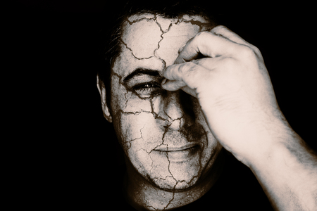 splitting headache: Creative image of a head portrait of a middle aged young looking male in black and white monochrome. The man holds his nose and sinus area with his fingers as cracks appear all over his skull and head area. Stock Photo