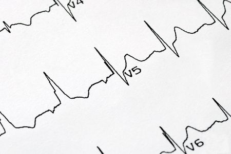 A macro picture of the EKG chart photo