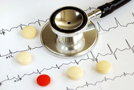 A stethoscope on the top of the EKG chart with pills concept of modern medicine photo