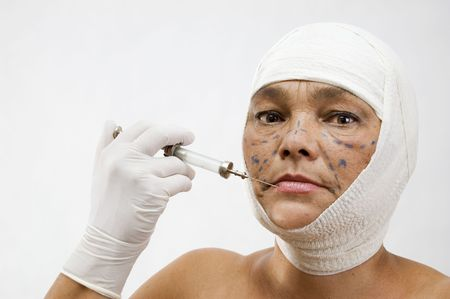 Plastic surgery. Mature woman over white. photo