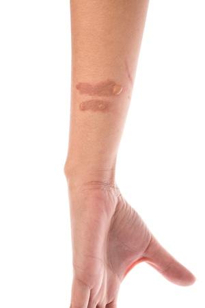 Tweede graad brandwonden brandwonden blaar op onderarm