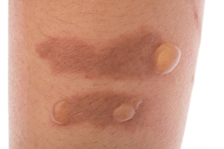 burn: Second degree scald burn blister on skin