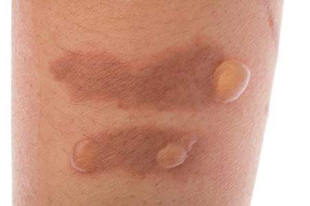 Tweede graad brandwonden brandwonden blaar op de huid